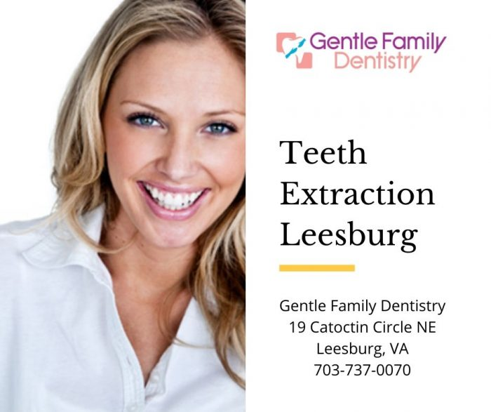 teeth extraction leesburg